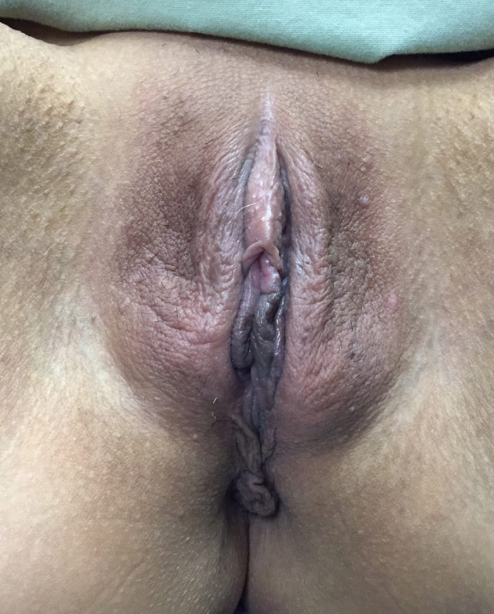 ThermiVa Vaginal Rejuenation C- before